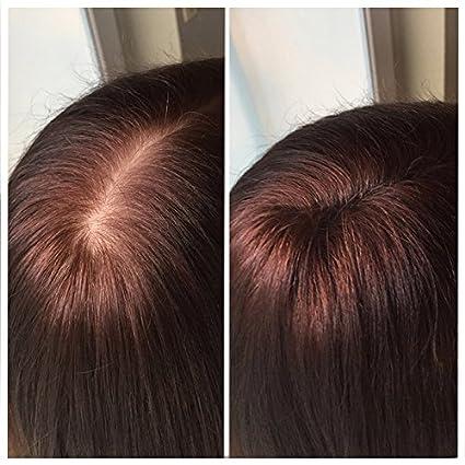 Fibras capilares Imperio - Para disimular la caída de cabello - Microfibras naturales de algodón resistentes - Castaño Oscuro: Amazon.es: Belleza