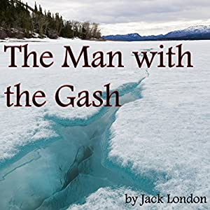 The Man with the Gash Audiobook