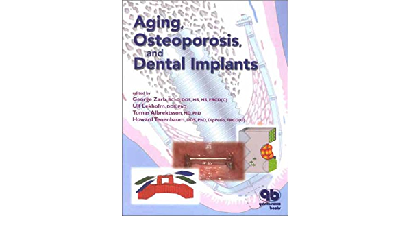 20++ Aging osteoporosis and dental implants information