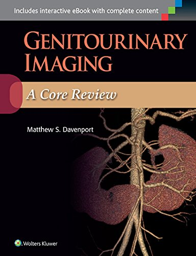 Genitourinary Imaging: A Core Review