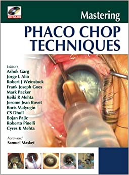 Book Mastering Phaco Chop Techniques