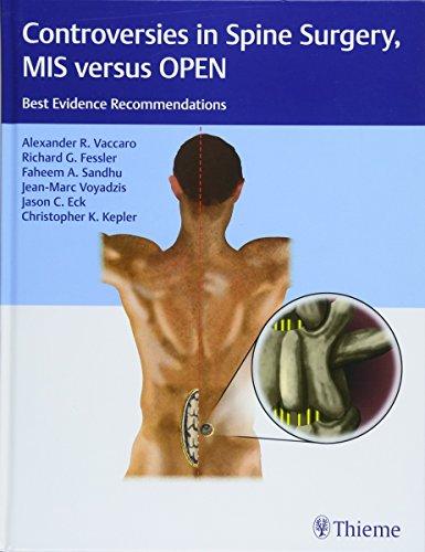Controversies in Spine Surgery, MIS versus OPEN: Best Evidence ()