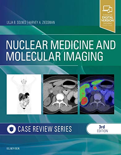 Nuclear Medicine and Molecular Imaging: Case Review Series - http://medicalbooks.filipinodoctors.org