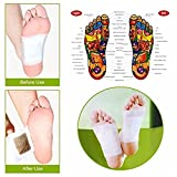 Kim-Onni Foot Pads Upgraded Patches with 100 Adhesive Sheets and 100 Foot Pads