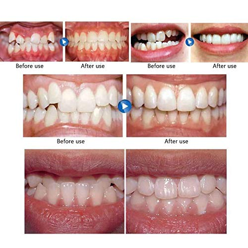 ZHOUHUAW Mouth Guard, Comfortable Bruxism Support Mouth Guard, Teeth Grinding, Dentist-Approved Teeth Protectors