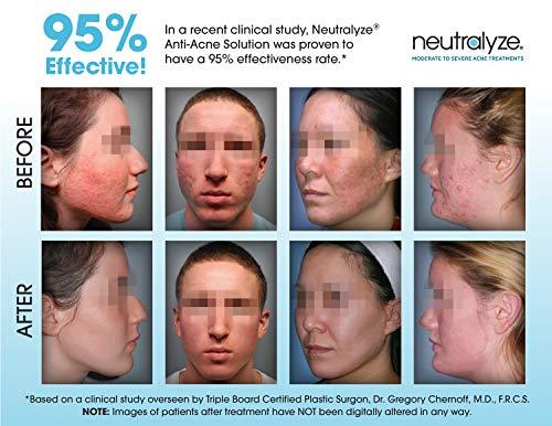 Neutralyze Acne Face Wash | Maximum Strength Facial Cleanser For Acne Prone Skin With 2% Salicylic Acid + 1% Mandelic… 4