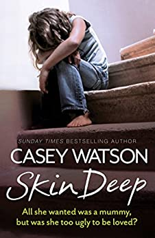 Skin Deep: All She Wanted Was a Mummy, But Was She Too Ugly to Be Loved? by [Watson, Casey]