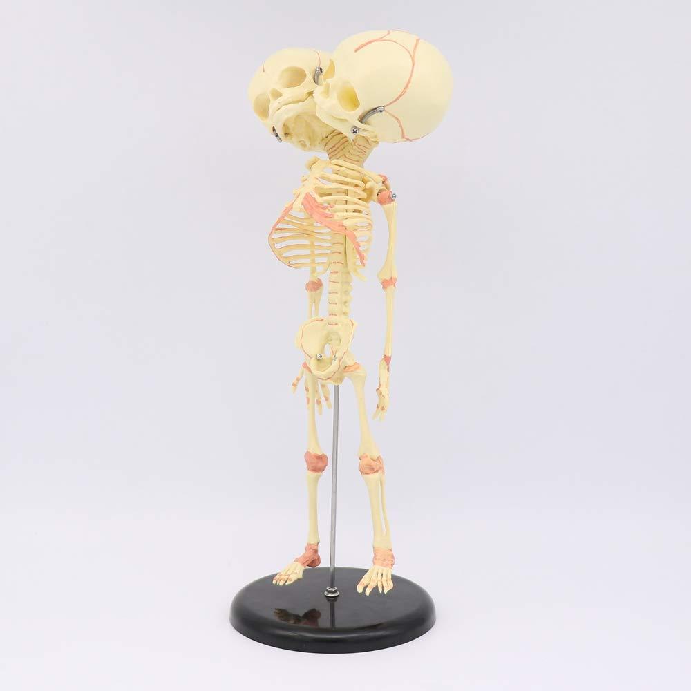 35cm Human New Double Head Baby Anatomy Education Skull Skeleton Study Display