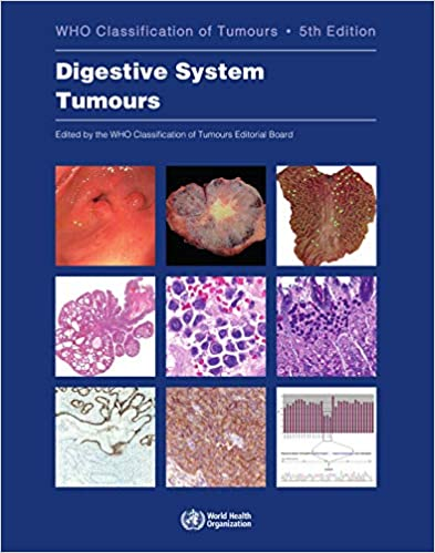 WHO Classification of Digestive System Tumours