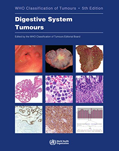 DEFAULT_SET: Digestive System Tumours: WHO