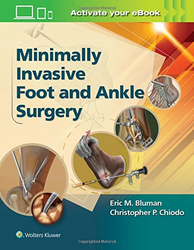 (Minimally Invasive Foot & Ankle Surgery (Minimally Invasive Orthopaedic Surgery))
