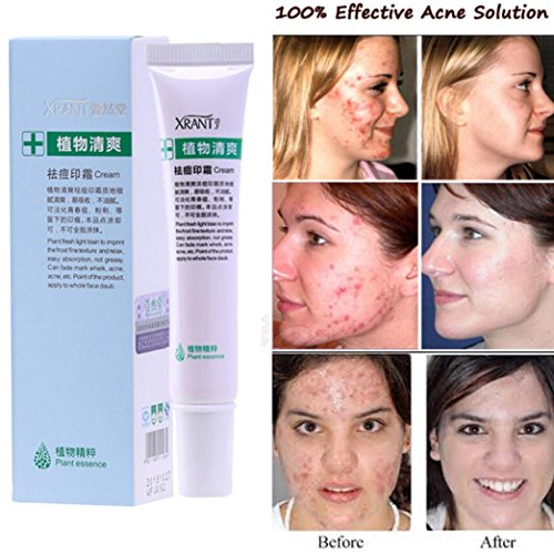 Acne Removal Cream, Botrong Soft Cream Freckle Cream Extract Acne Removal Scars Marks Treatment Facial (Cellular Wrinkle Treatment)