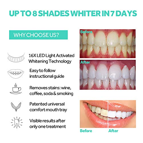 Teeth Whitening Accelerator Light, 16x More Powerful Blue LED Light, Mouth Tray Teeth Whitening Enhancer Light Trays Connected with iPhone/Android/USB for Home Use