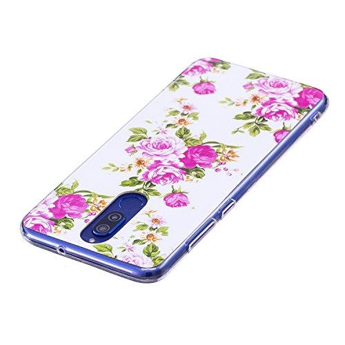 Funda para Huawei Mate 10 Lite , IJIA Noctilucent Adorable Perro TPU Silicona Suave Cover Tapa Caso Parachoques Carcasa Cubierta Soft Shell Case para Huawei Mate 10 Lite (5.9) XS38