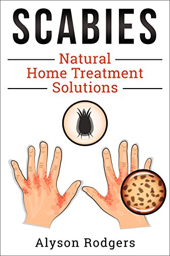 Scabies Natural Home Treatment Solution by [Rodgers, Alyson]