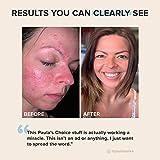 Paula's Choice CLEAR Regular Strength Acne