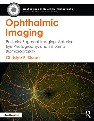 (Ophthalmic Imaging: Posterior Segment Imaging, Anterior Eye Photography, and Slit Lamp Biomicrography (Applications in Scientific Photography))