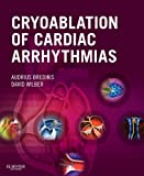 Cryoablation of Cardiac Arrhythmias E-Book (Expert Consult Title: Online + Print)