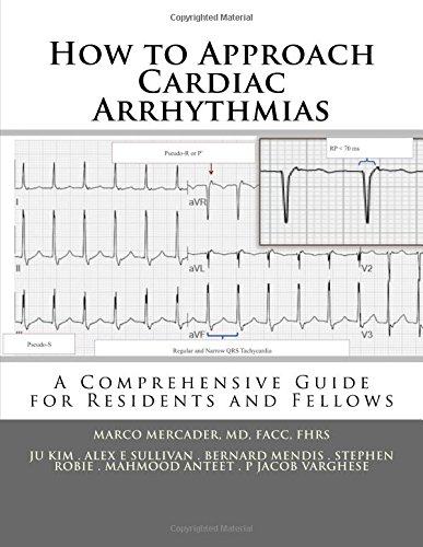 How to Approach Cardiac Arrhythmias: A Comprehensive Guide for Residents and Fellows