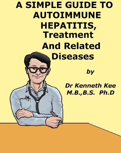 A Simple Guide to Autoimmune Hepatitis, Treatment and Related Diseases (A Simple Guide to Medical Conditions)