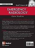 Emergency Radiology: Case Studies