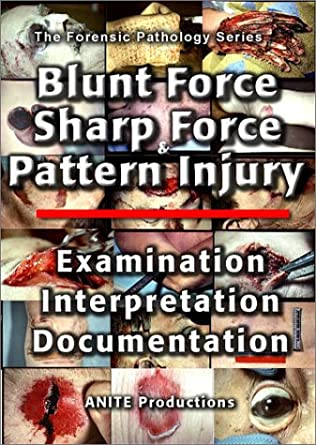 Amazon Com Blunt Force Sharp Force Pattern Injury Examination Interpretation Documentation Vhs Jason Alexander Movies Tv