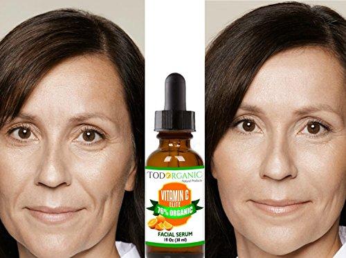 Líneas Finas Faciales, Antienvejecimiento, Manchas Faciales, Tópico Profesional, Daño Solar, Top Anti-Arrugas, Cuidado de la Piel con Vitamina ...