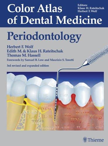 (Color Atlas of Dental Medicine: Periodontology)