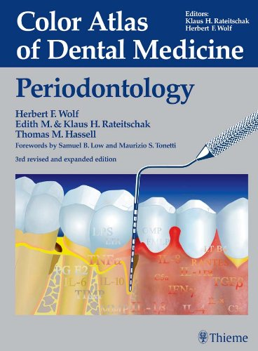 Color Atlas of Dental Medicine Periodontology (3rd 2005) [Wolf, Rateitschak & Hassell]