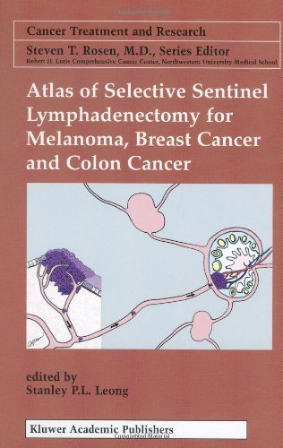Download Atlas of Selective Sentinel Lymphadenectomy for Melanoma, Breast Cancer and Colon Cancer (Cancer Treatment and Research) Pdf