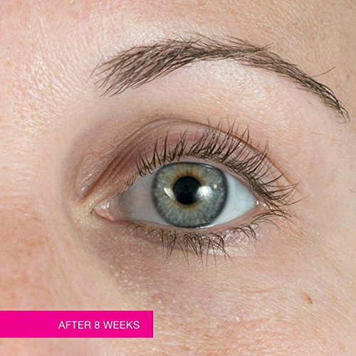 3f738019754 Amazon.com : Avon Anew Clinical Unlimited Lashes Lash & Brow Activating  Serum : Beauty