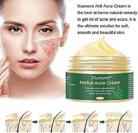 Crema Antiacne, Acné Crema, Acne Tratamiento, Reducir los Puntos negros, Acne Cream, Equilibrar el Agua y el Aceite, la Crema Contra el Acné Espinilla Regenera la piel, 100 g