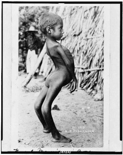 amazon com photo mexican boy birth defects children handicapped