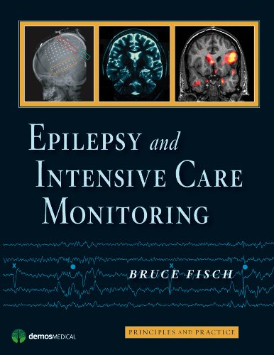 Epilepsy and Intensive Care Monitoring: Principles and Practice