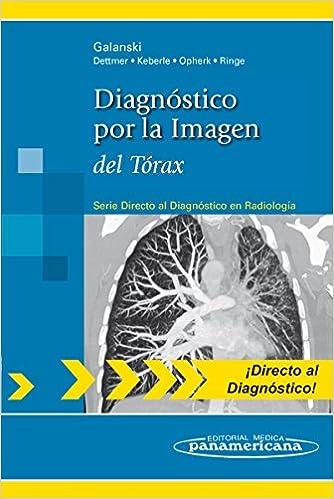 Galanski:diagn.por Imagen.t—rax: Del Tórax por Sabrina Ais