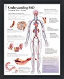 wallsthatspeak Understanding PAD Peripheral Artery Disease Framed Medical Educational Informational Poster Diagram Doctors Office School Classroom 22x28 Inches