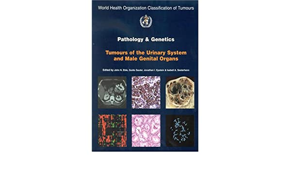 Pathology and Genetics of Tumours of the Urinary System and Male Genital Organs