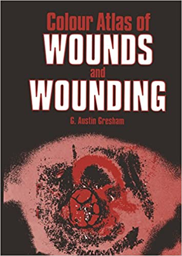 Amazon colour atlas of wounds and wounding ebook ga gresham amazon colour atlas of wounds and wounding ebook ga gresham kindle store fandeluxe Image collections