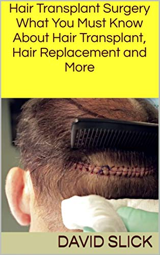 Hair Transplant Surgery: What You Must Know About Hair Transplant, Hair Replacement and More