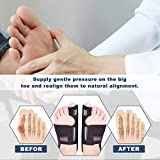 Bunion Corrector, Bunion Splint, Big Toe Bunion
