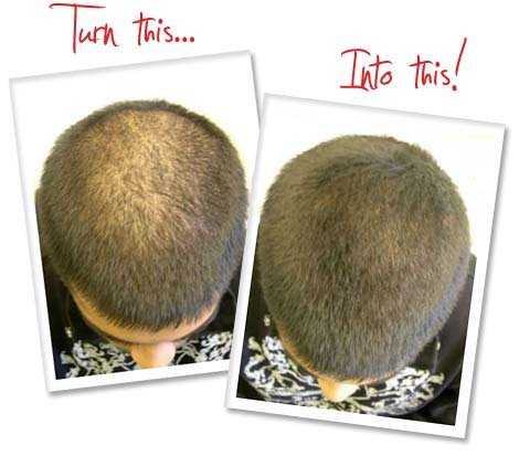 Rápido Crecimiento Pelo Fórmula 3 Mes Suministro crece pelo, barba, pelo crecimiento Tratamiento
