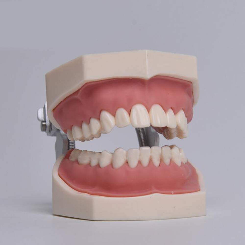 JOND Modelo De Tipodonto Oral Dental Implante Estudio De ...
