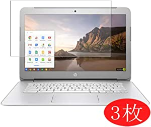 【3 Pack】 Synvy Screen Protector for HP Chromebook 14-ak000 si / ak013dx / ak050nr / ak040nr / ak060nr / ak031nr / ak010nr / ak041dx / ak040wm / ak045wm 14