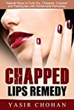 Chapped Lips:Chapped Lips Remedy: Natural ways to Cure lips,dry lips,Chapped lips,Cracked lips & Peeling lips with Homemade Remedies (severe chapped lips causes & Cure)