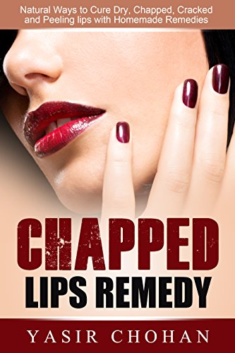 Chapped Lips Causes And Treatment