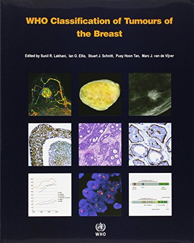 WHO Classification of Tumours of the Breast (IARC WHO Classification of Tumours) by World Health Organization