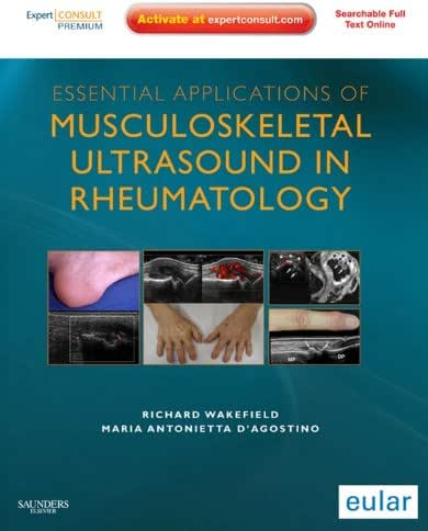 Essential Applications of Musculoskeletal Ultrasound in Rheumatology E-Book: Expert Consult Premium Edition: Enhanced Online Features and Print