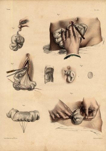 2 Antique Medical Anatomy Prints-ABDOMINAL Wound-Intestines-Pl. 30-Bourgery-1831