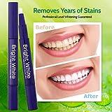 Teeth Whitening Pen (2 Pack),Y.F.M Hydrogen Peroxide Teeth Stain Remover,Teeth Whitener,Teeth Whitener Treatments,Painless No Sensitivity Teeth Whitening Gel Pen with 1Mouth Opener, 15Teeth Wiper,3 ML