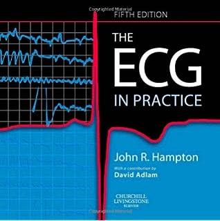 150 ECG Problems, 4e